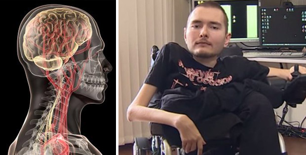World's first head transplantation donor found