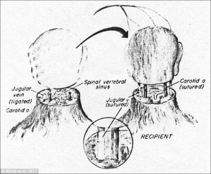 human head transplantation
