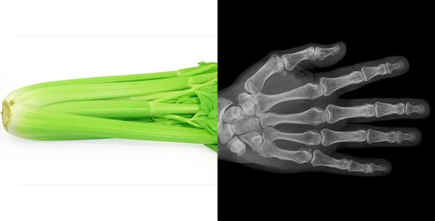 Celery reinforces bones